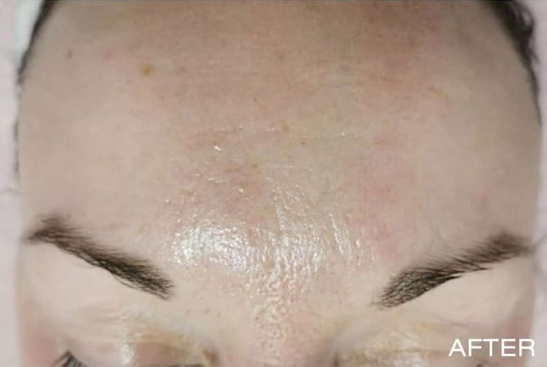 Microdermabrasion-example-after