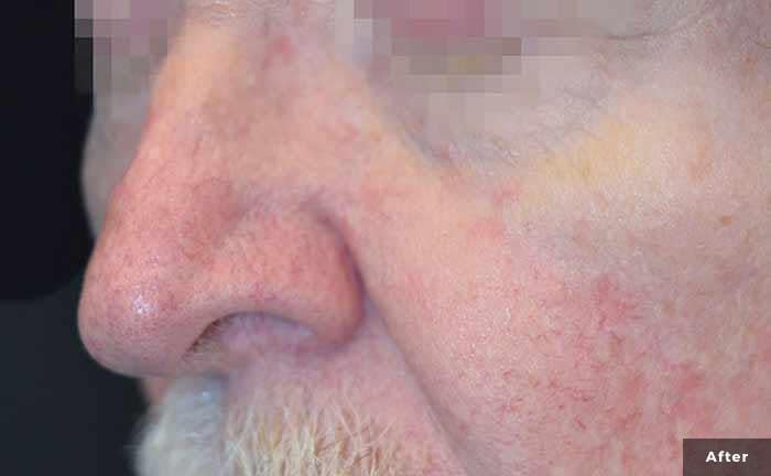 excelv-veins-facial-after
