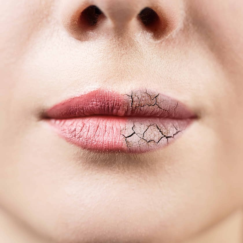 why you need lip balm