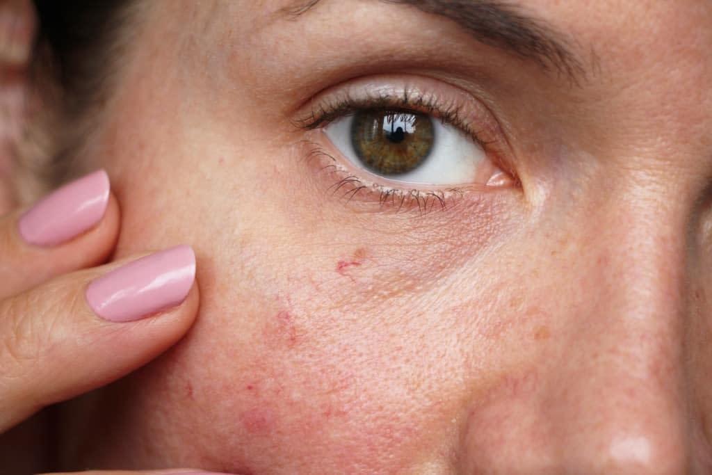 Rosacea & Facial Redness
