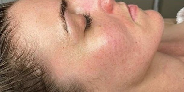 Microdermabrasion-after