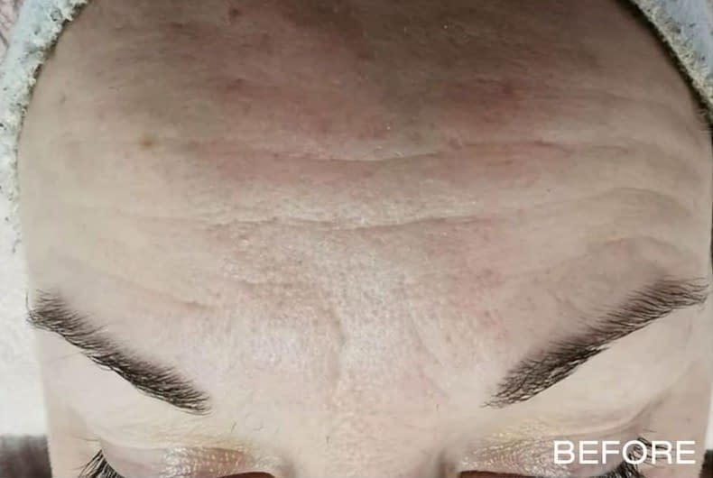 Microdermabrasion-example-before